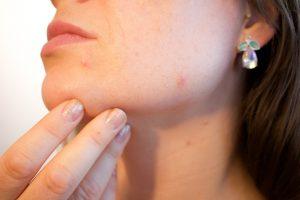 Tips tegen acne